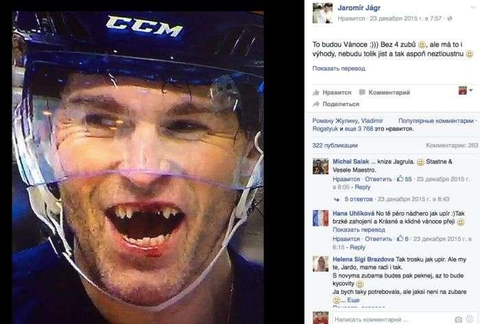 Чеський хокеїст Яромір Ягр позбувся чотирьох зубів під час матчу (2 фото + відео)