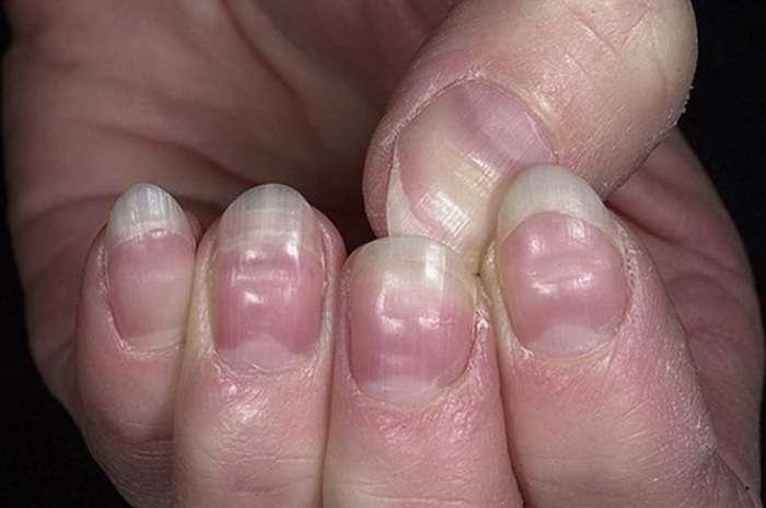 Що можуть сказати нігті про наше здоровя (7 фото)