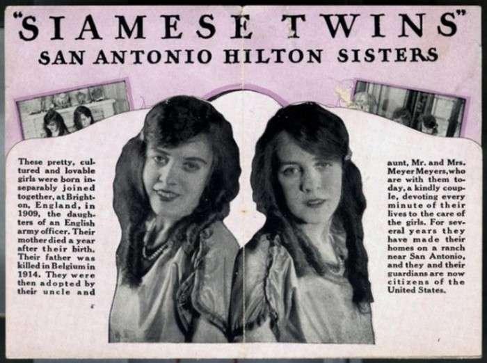 Сіамські близнюки сестри Хілтон, стали зірками водевілю (19 фото + відео)