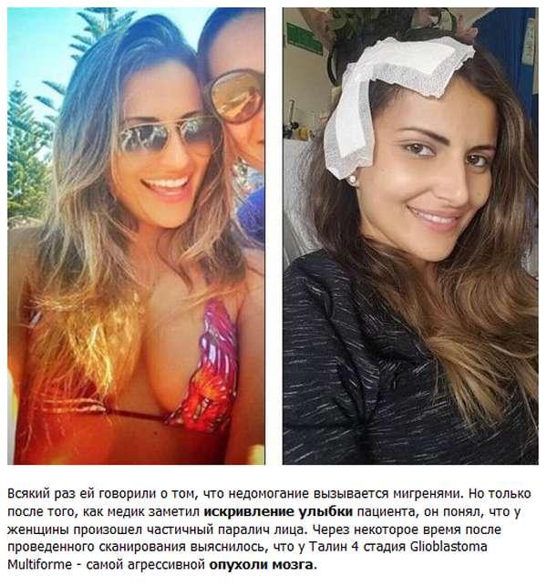 Як посмішка врятувала життя 30-річної бразильянке (4 фото)