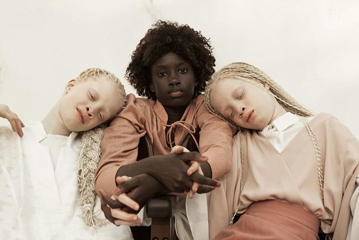 Очаровательные близняшки-альбиносы покорили интернет своей уникальной красотой альбинизм,близнецы,интересное,красота,Бразилия